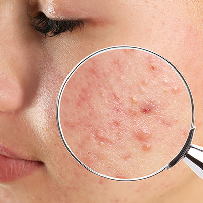 How To Treat Your Blind Pimples With Ayurveda?