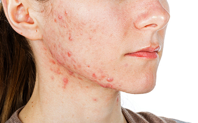 How To Fight Hormonal Acne Breakouts With Ayurvedic Remedies?