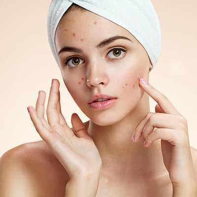 How To Treat Blemishes On Your Face With Ayurveda?