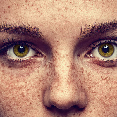 How To Lighten Your Freckles With Ayurvedic Remedies?