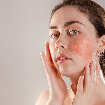 How To Treat Skin Inflammation With Ayurveda?