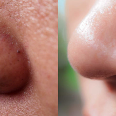 How To Clean Your Nose Pores With Natural Remedies?