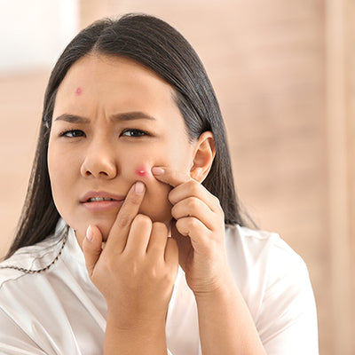 Ayurvedic Remedies To Get Rid Of Pimples