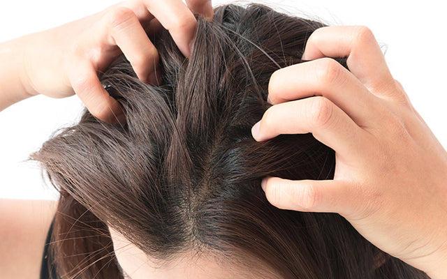 How To Treat Dry Scalp With Ayurvedic Remedies?