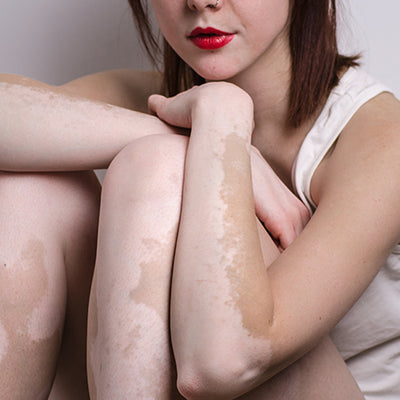 How To Identify & Cure  Vitiligo Through Ayurveda?