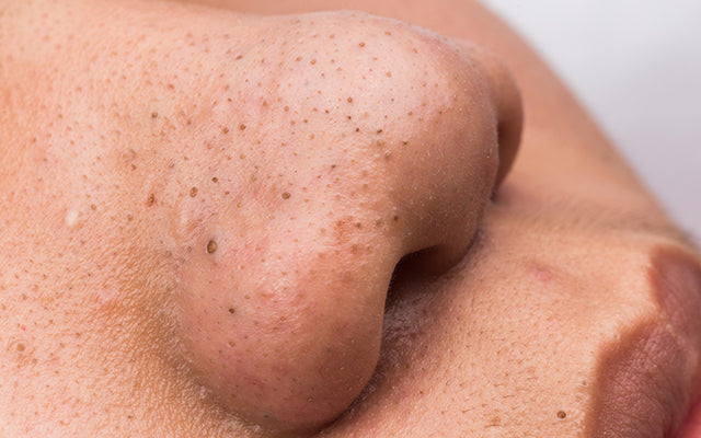 How To Get Rid Of Blackheads With Natural Remedies?