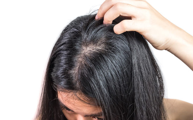Oily & Greasy Scalp? Try These Holistic Ayurvedic Treatments!