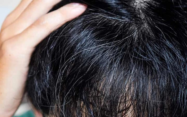 How To Reverse Your Premature Grey Hair With Ayurveda?