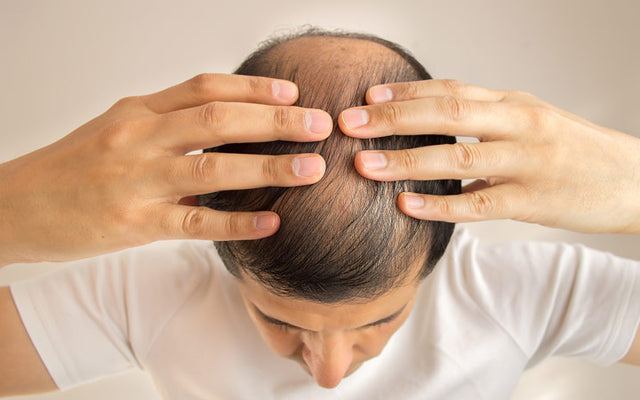 Effective Natural Hair Loss Treatments From Ayurveda