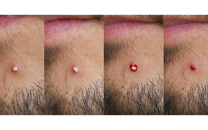 4 states pimple macro evolution over a man chin with stubble
