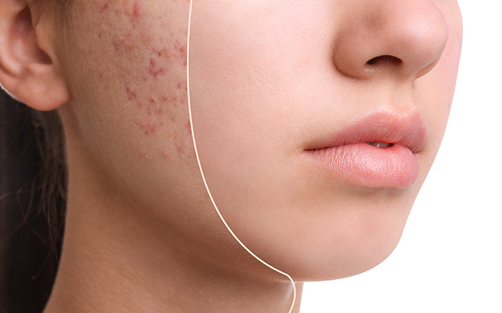 Teenage girl before and after acne treatment