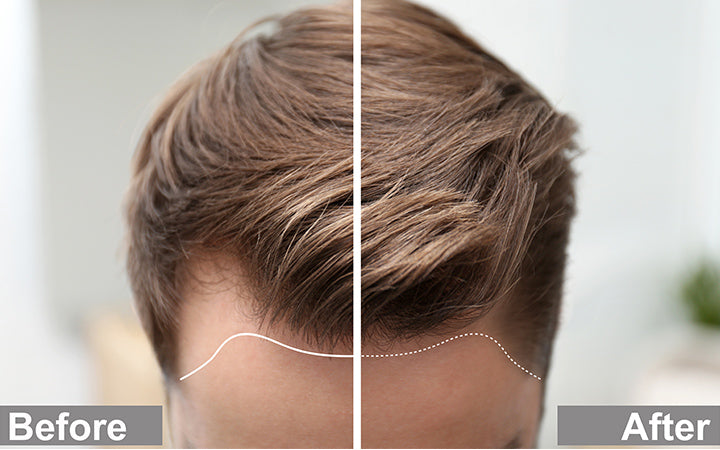Young man before and after hair loss treatment