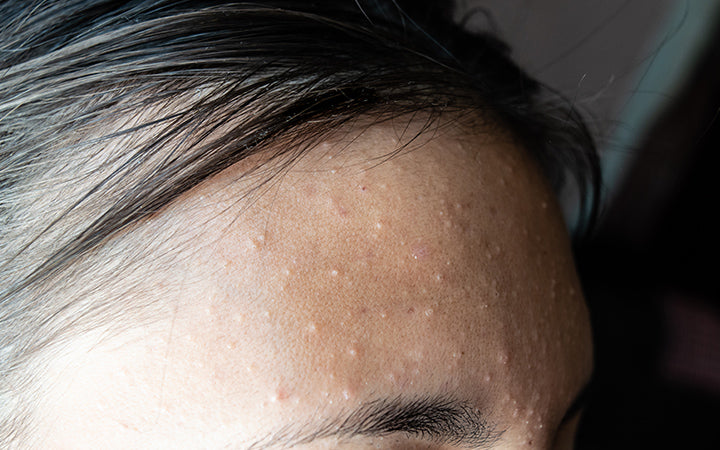 acne on the face of woman