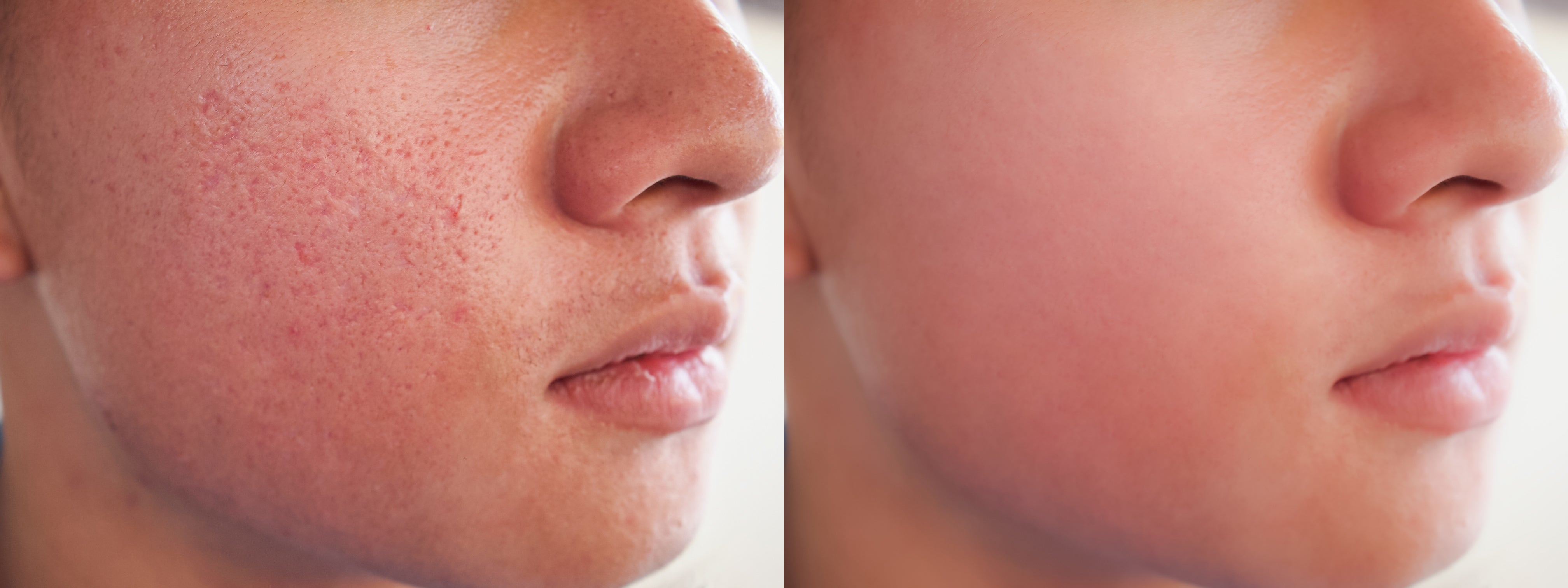 before and after spot acne pimple treatment