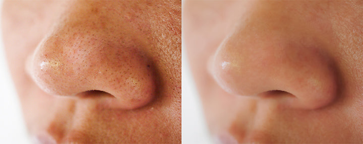 before and after spot treatment on nose