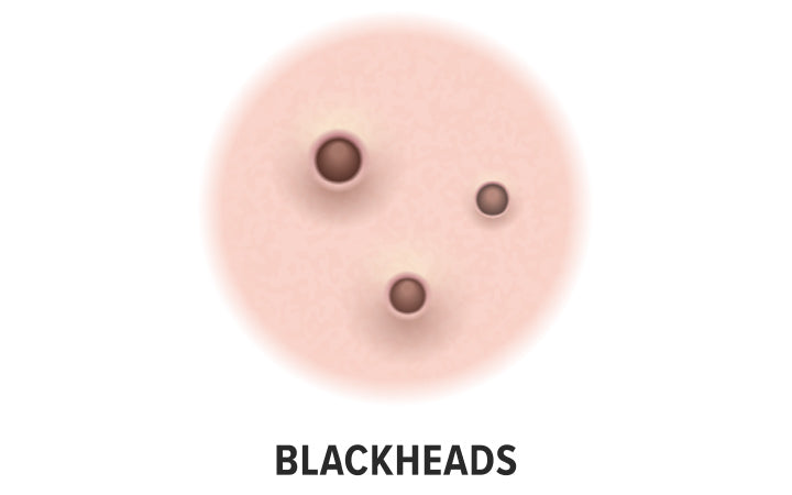 blackheads skin acne type vector icon