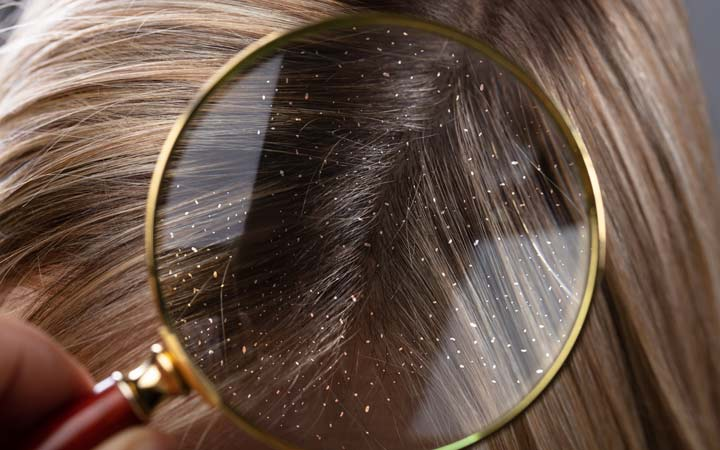 dandruff in magnifying glass