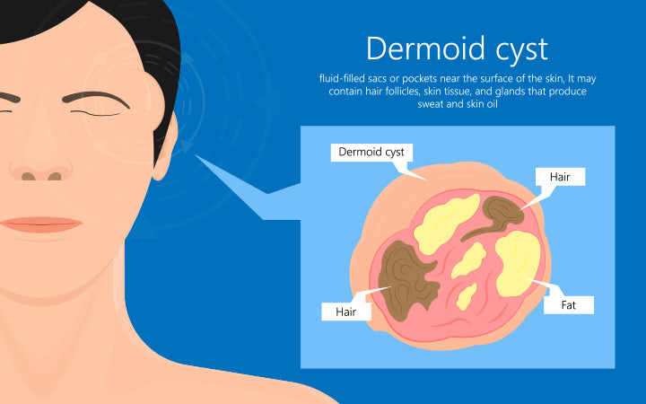dermoid cysts symptoms on patient face