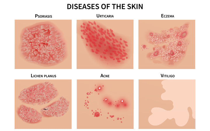 different skin diseases