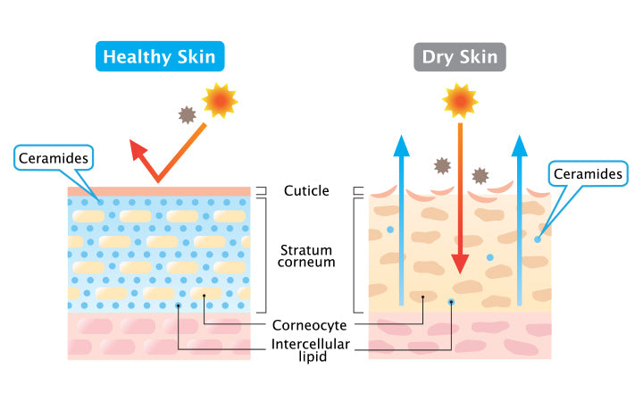 dry and healthy skin layer illustration