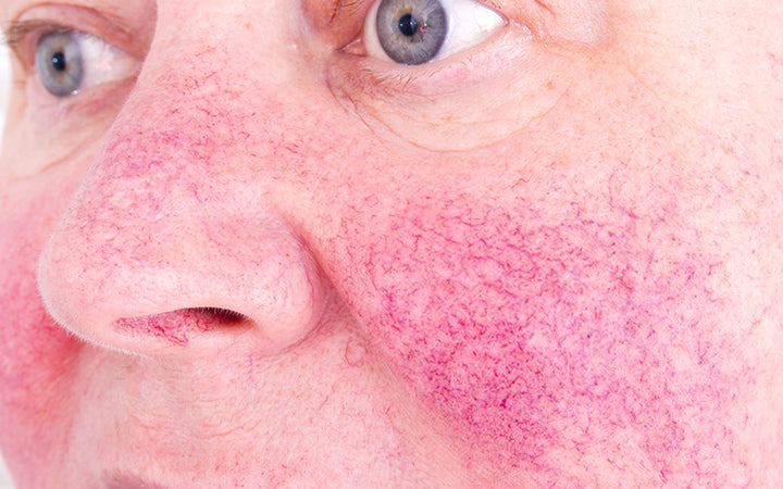 elderly woman with skin condition rosacea