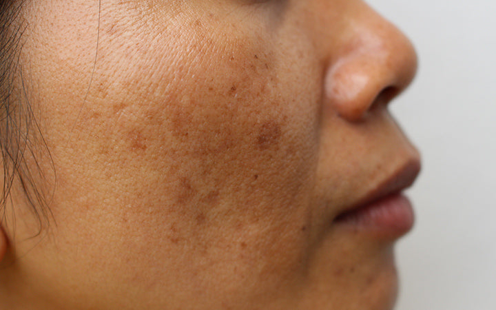 face of the girl with freckles and large pores