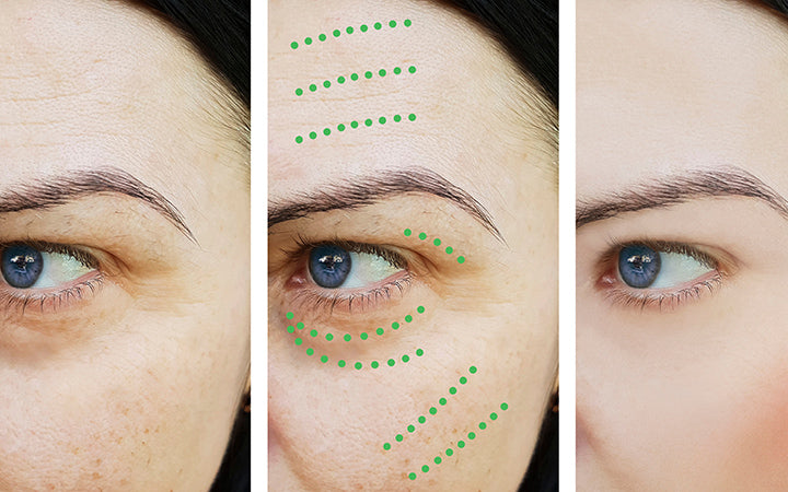 face wrinkles before after correction