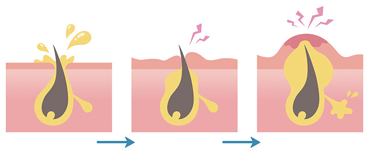 formation of acne process