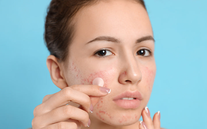 girl applying acne healing patch on face
