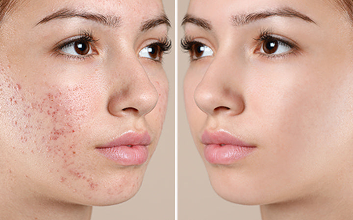 girl before and after acne treatment