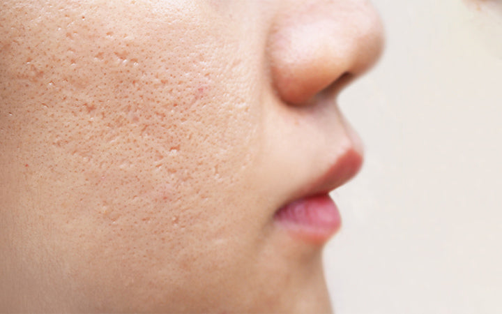 icepick scars acne on cheek face