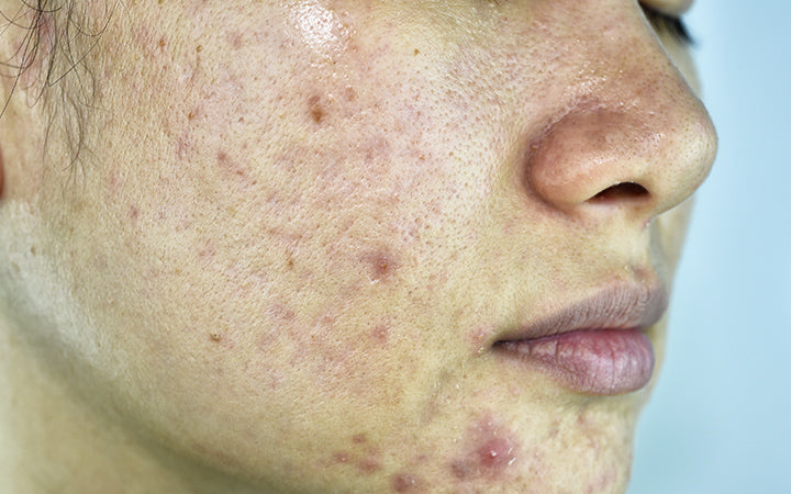 infected sebaceous glands red acne