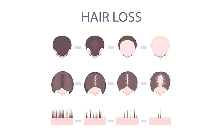 male and female hair loss patterns