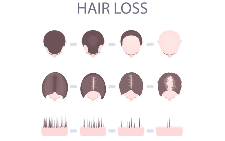 male and female pattern hair loss set