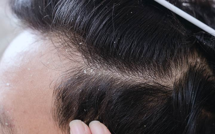 man showing scalp dandruff