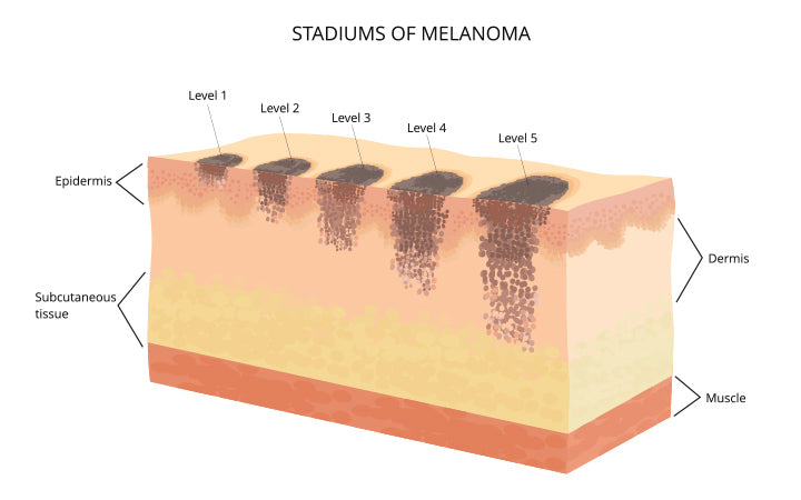 melanoma levels in skin