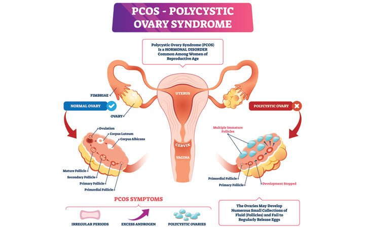 pcos comparision