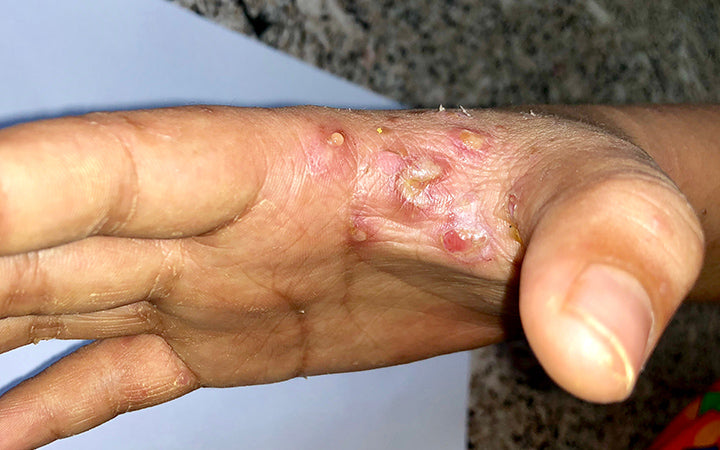 person with scabies infestation in right hand