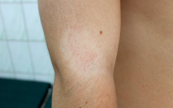 pityriasis alba in a young man