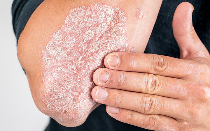 psoriasis, eczema and other diseases of skin