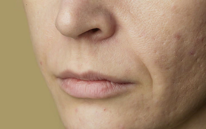 sensitive skin with large pores