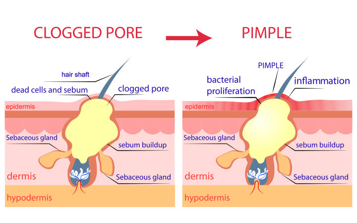 showing how clogged pore become red papule pustule