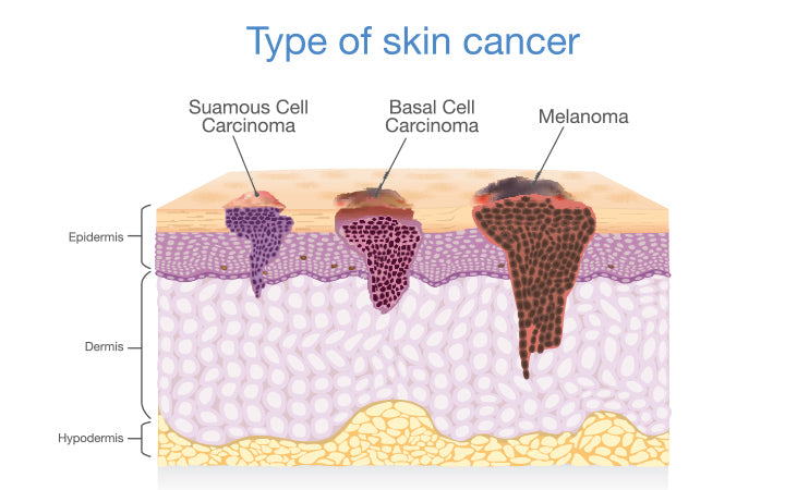 skin layer have 3 types of cancer