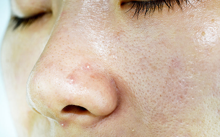 skin problem with acne diseases
