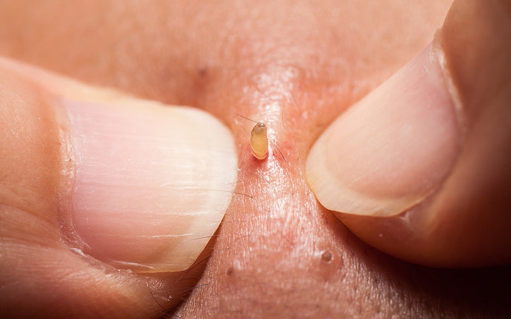 squeezing pimple blackheads from the nose