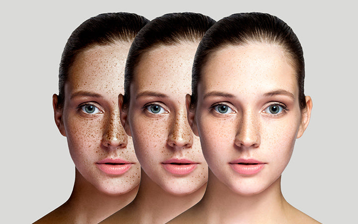 step by step concept of healing and removing freckles
