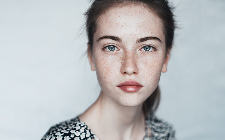 white girl with freckles on face