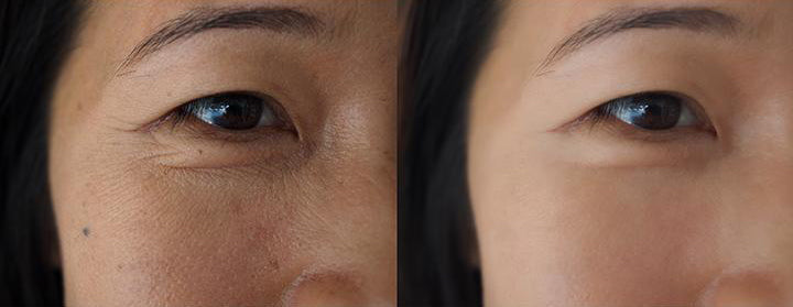 woman before & after rejuvenation surgery on face