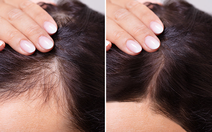 woman before and after hair loss treatment