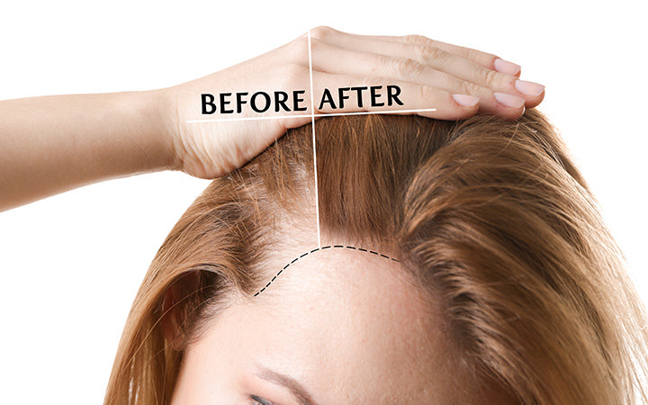 woman before and after hair transplantation